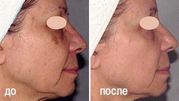 Удаление пигментных пятен в Перми в Клинике современной косметологии