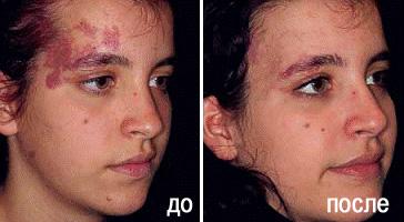Лечение винного пятна в Перми