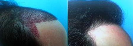 Волосы выпадают лысею что делать